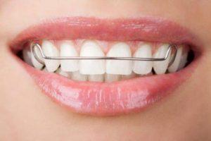 Hình ảnh cấy ghép răng implant nha khoa